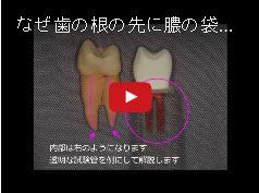 【動画】なぜ歯の根の先に膿の袋ができるのか?