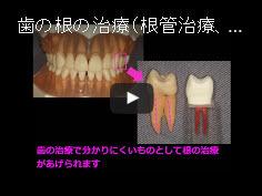 【動画】歯の根の治療(根管治療、神経の治療)は何をしているのか?