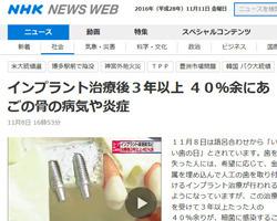 インプラント周囲炎とは?:NHKニュース