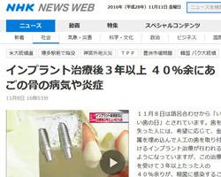インプラント周囲炎2016年11月NHKニュースの画像