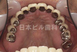 インプラント治療例(多数歯)