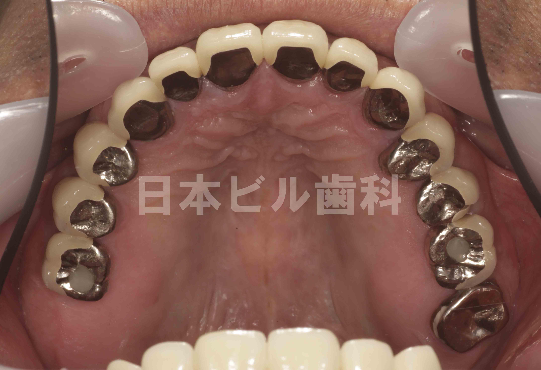 東京のインプラントの名医の症例、術後