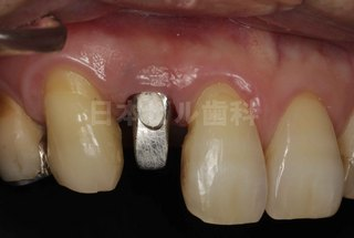 インプラント治療例(前歯)