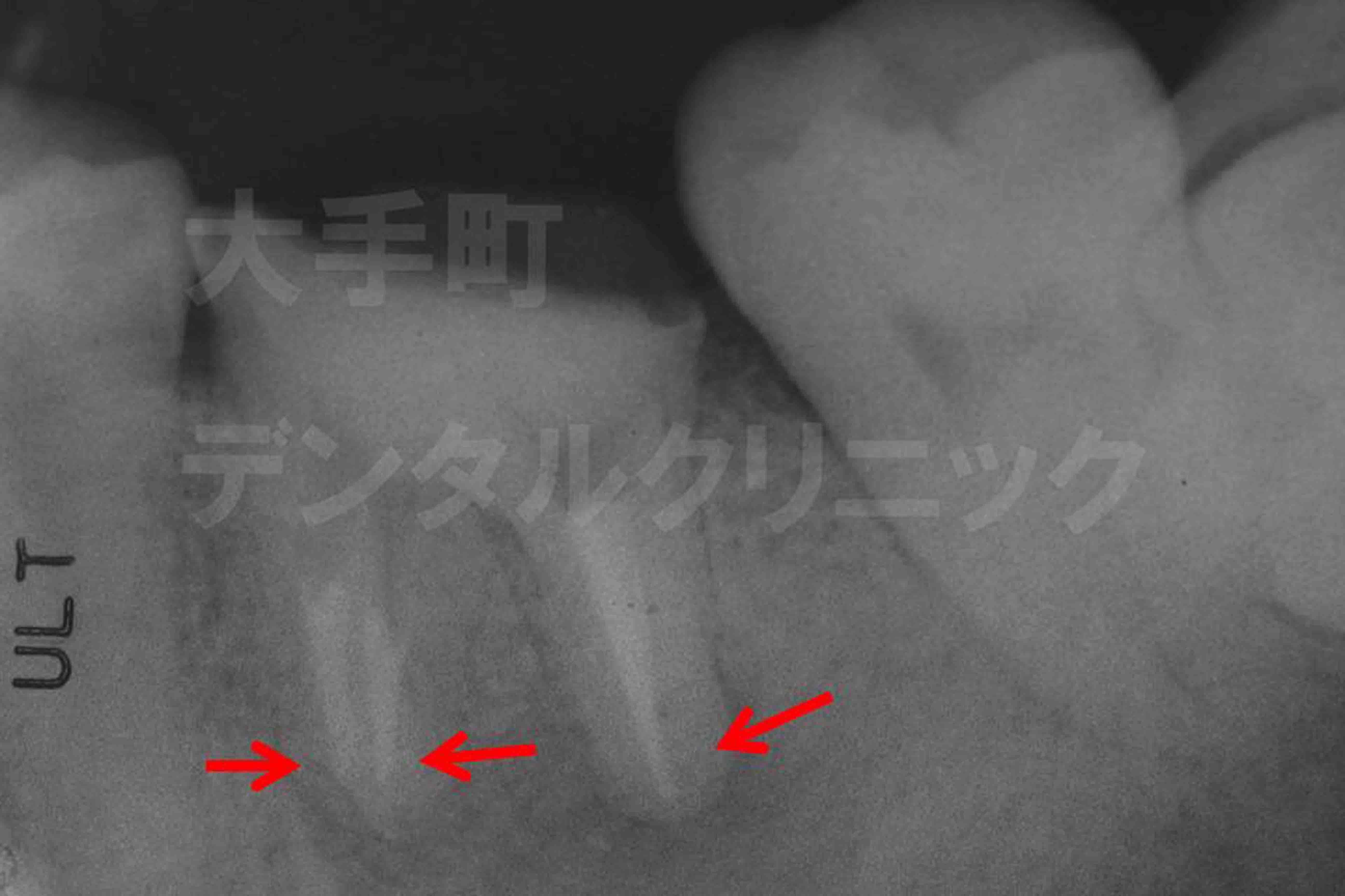 歯の根の治療後のレントゲン