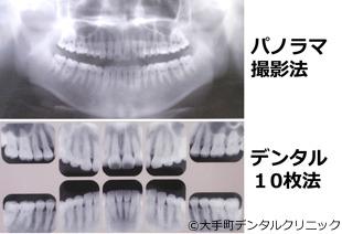 歯医者で撮るレントゲン2種類の比較の図