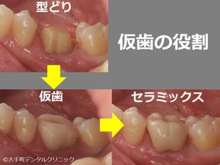 歯の治療で仮歯の入れる理由のイメージ図
