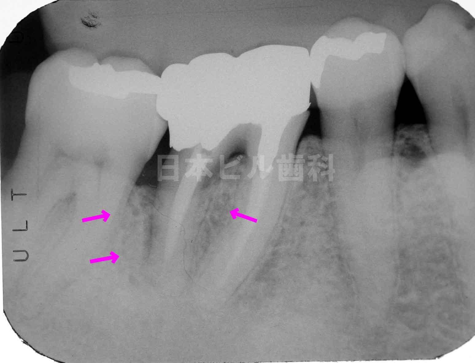歯周病治療�A再生治療