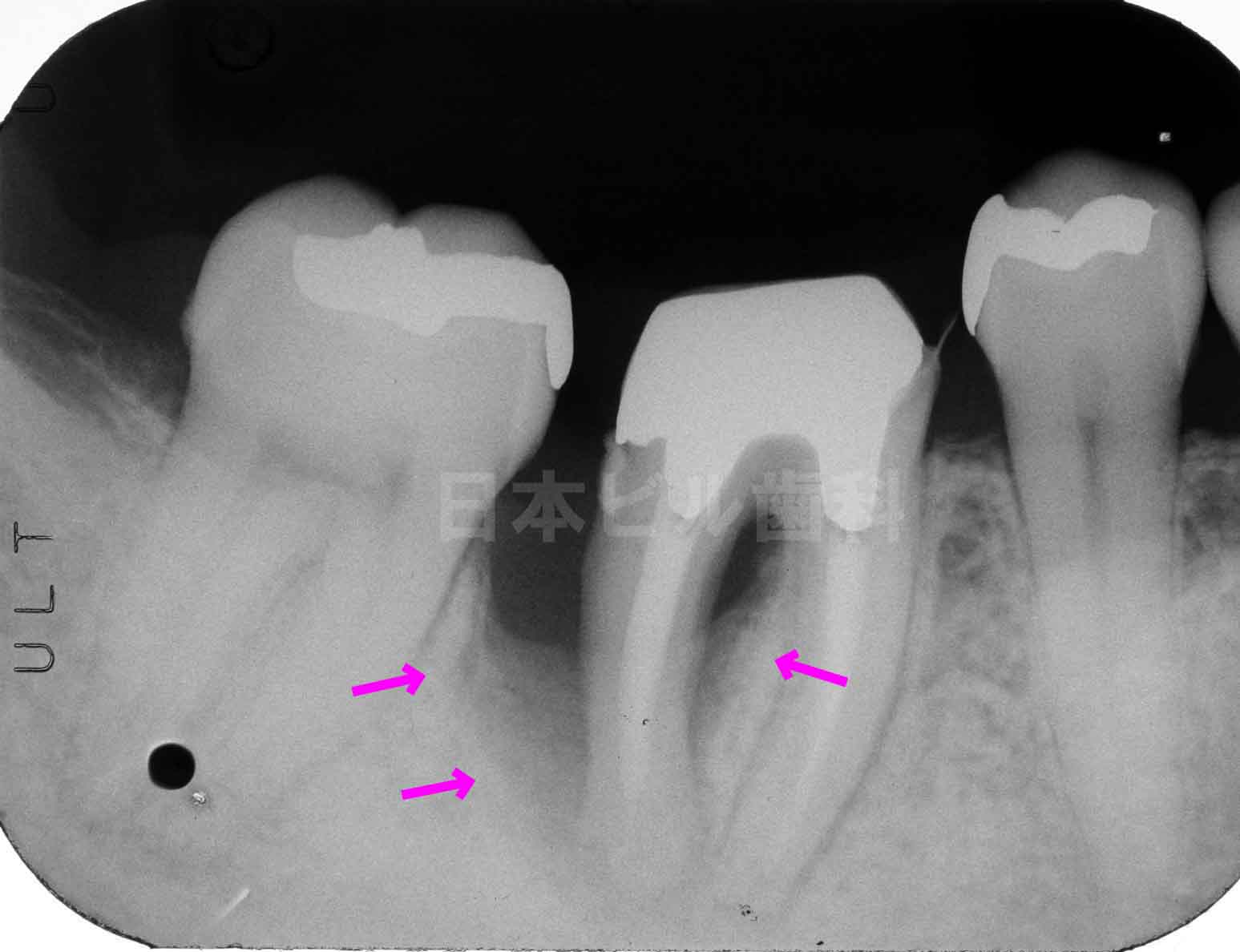 歯周病の治し方�@再生治療