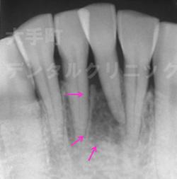 歯周病治療で歯ぐきの骨が再生した例、治療後