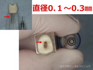 歯の根管の直径イメージ