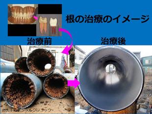 歯の根の治療(根管治療、神経の治療)のイメージを水道管で比較説明した画像