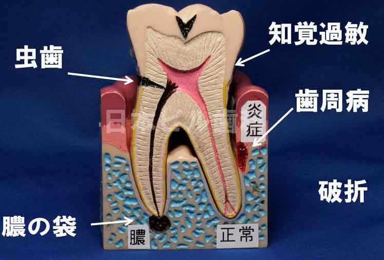 歯が痛い場合の治し方