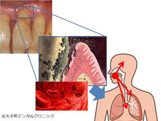 口腔内細菌が血管をつたわり全身に影響する