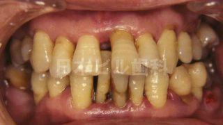 総合歯科治療の治療例