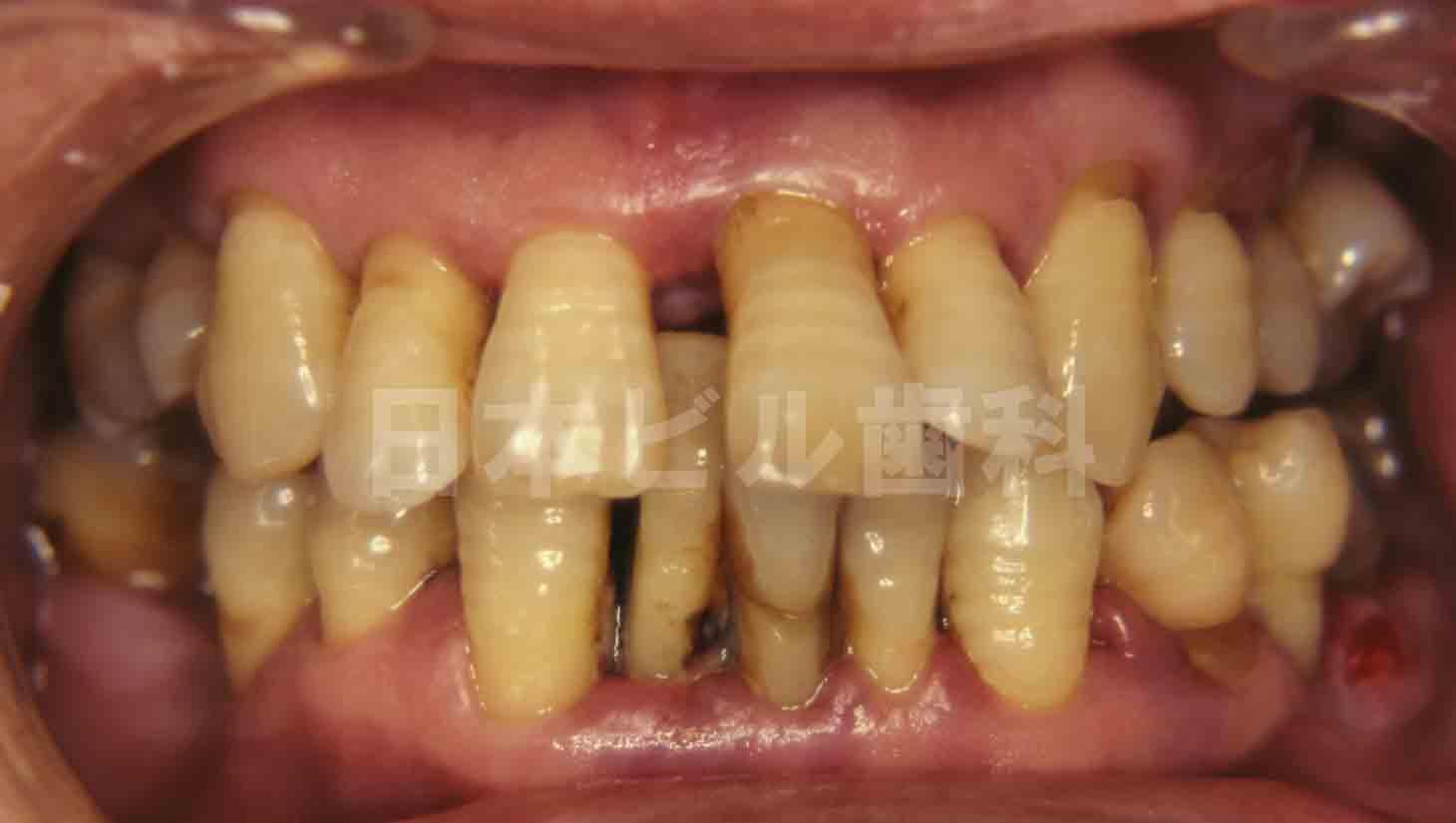 重度歯周病治療例、術前