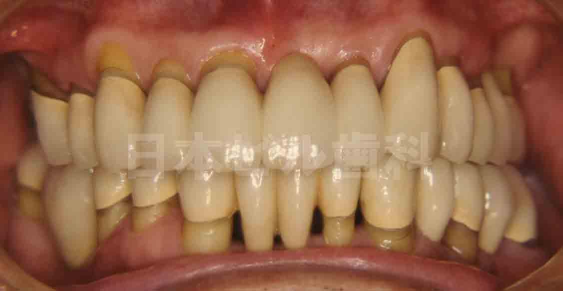 重度歯周病の治療例、術後