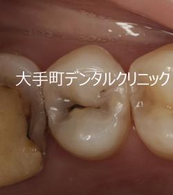 ダイレクトボンディング法(虫歯の治療例)について