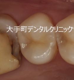 小さい虫歯の治療例(小臼歯)治療後