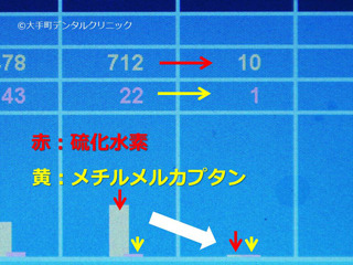 ハリブレッサーのデータ画面