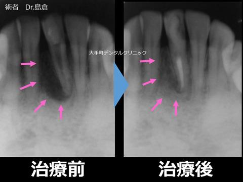 根の先に膿の袋がある歯の治療前と治療後のレントゲンの比較