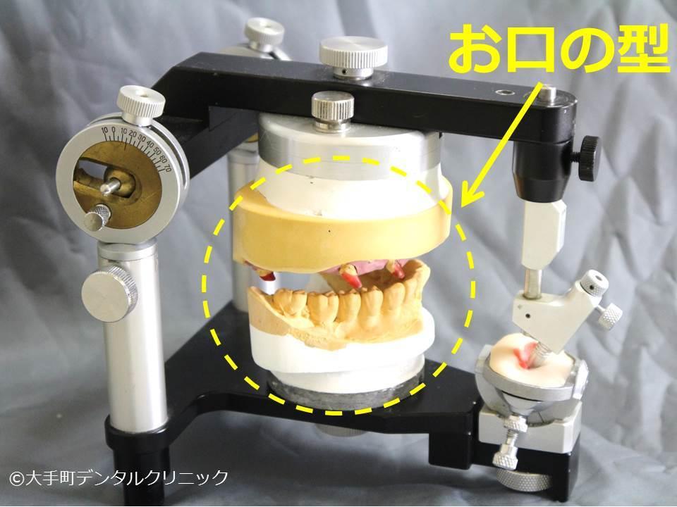 かみ合わせの治療に使用する半調節性咬合器