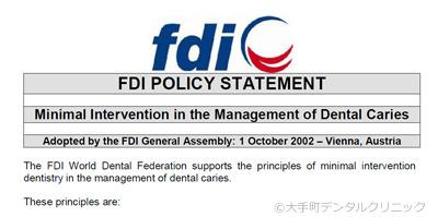 FDI国際歯科連盟のMI提唱