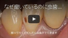 【動画】なぜ磨いているのに虫歯になるのか?(その1)