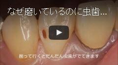 虫歯の原因と磨き残しの解説動画へ