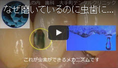 虫歯の原因とメカニズムの動画へ