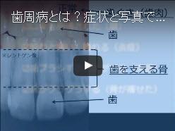 【動画】歯周病(歯槽膿漏)とは?